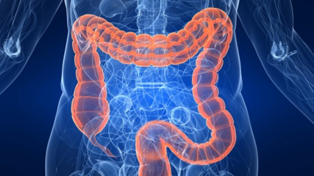 colorectal_colon_3d